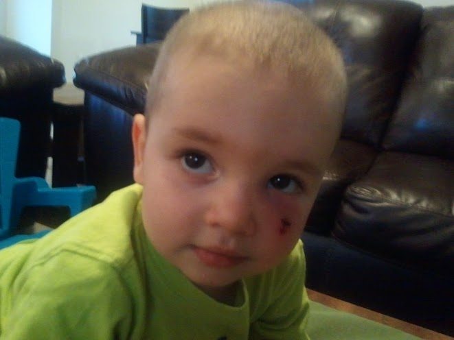 What it looks like today...he's got quite the shiner to go with it.
